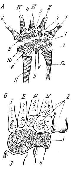 Схема строения кисти ( А ) и